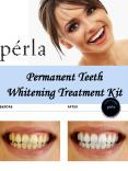 Permanent Teeth Whitening Treatment Kit PowerPoint PPT Presentation