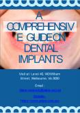 A Comprehensive Guide On Dental Implants PowerPoint PPT Presentation