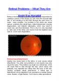 Retinal Problems – What They Are - Arohi Eye Hospital PowerPoint PPT Presentation