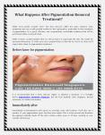 What Happens After Pigmentation Removal Treatment - Guide PowerPoint PPT Presentation