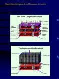 Aminogluc PowerPoint PPT Presentation