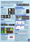 Neonatal Brain Development assessed by new quantitative Analysis of 3Tesla MRI and DTI PowerPoint PPT Presentation
