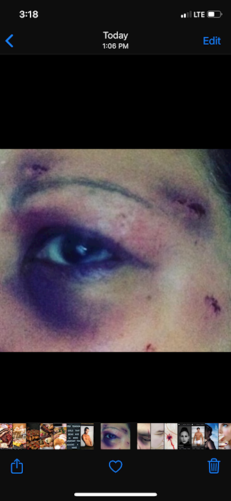 Black eye / cuts