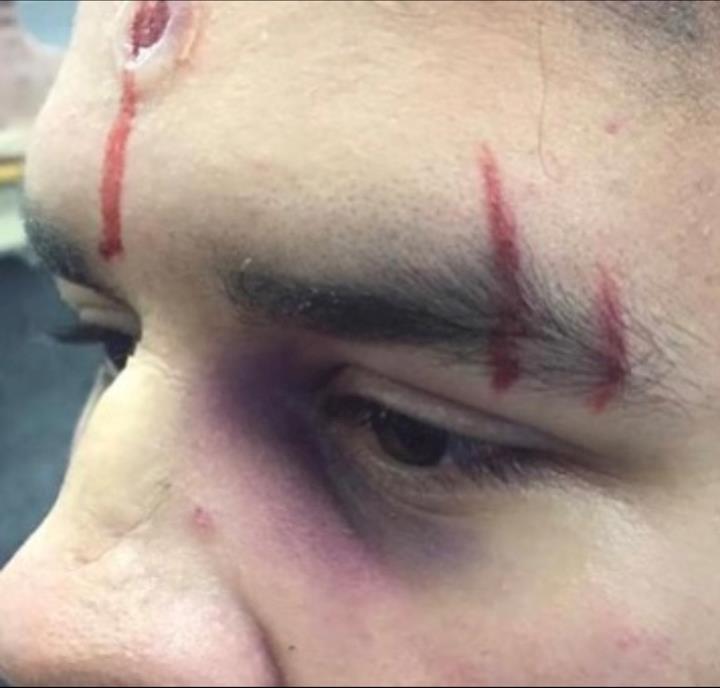 Broken nose , cuts