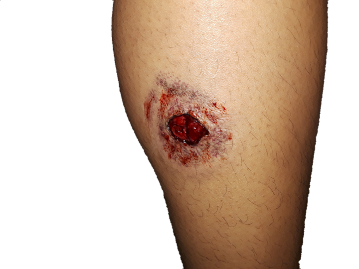 Close-range gunshot wound to the calf with stippling/tattooing and bruising