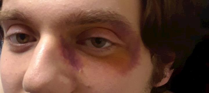 Black Eye - Early Stage Healing view #2