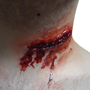 Throat Gash with fatty tissue exposed