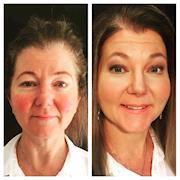 Before and After Rosacea Skin condition Makeover (Makeup)