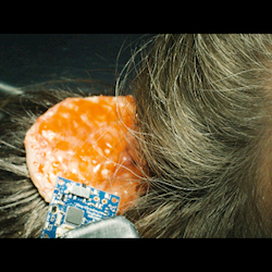 "Brain surgery. Still from short film ""System on a Chip."""