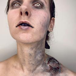 zombie bite infection
