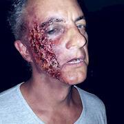 SFX Third Degree Burn Makeup