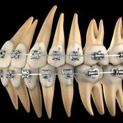 Orthodontic Dental Visualization for Densply Pharmaceutical