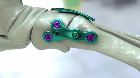 Orthohelix AAOS 2011 Reel