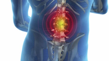Dr. Scott Stanley - Lumbar Decompression Procedure