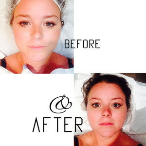 Before after6