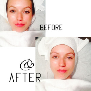 Before after8