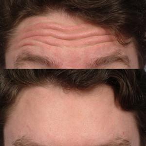 Forehead bef aft web