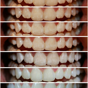 Photo teeth whitening shade change
