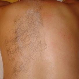 Back waxing 1