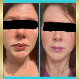Client before and after filler   botox