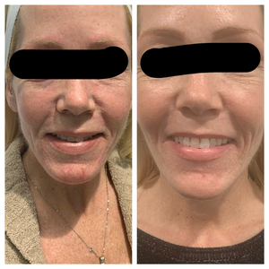 Client befor and after botox