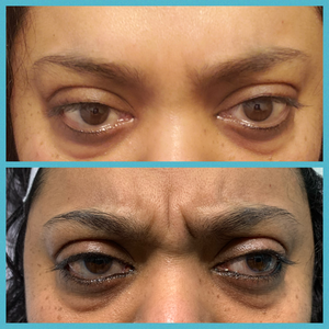 Client before and afer glabella lines