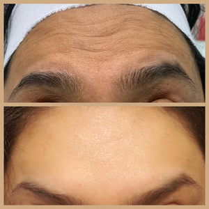 Client before and after forehead