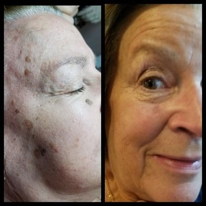 Skin classic htperpigmentation