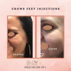 Before and after crows feet injections %282%29