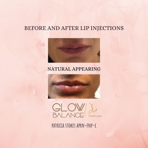 Before and after lip injections %281%29