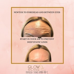 Newtox to forehead and between eyes %281%29