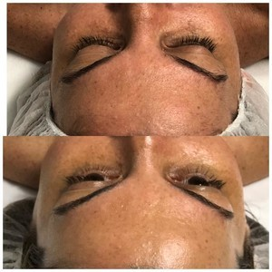Winter springs dermaplaning facial