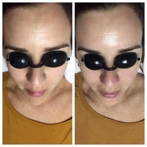 Ft. lauderdale microdermabrasion facial