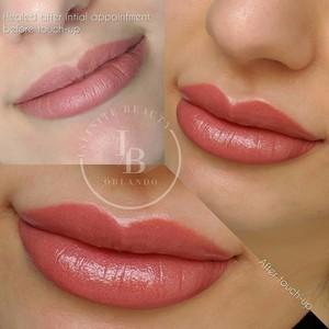 Metrowest orlando aquarelle lip pigmentation