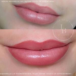 Metrowest orlando aquarelle lip pigmentation 3
