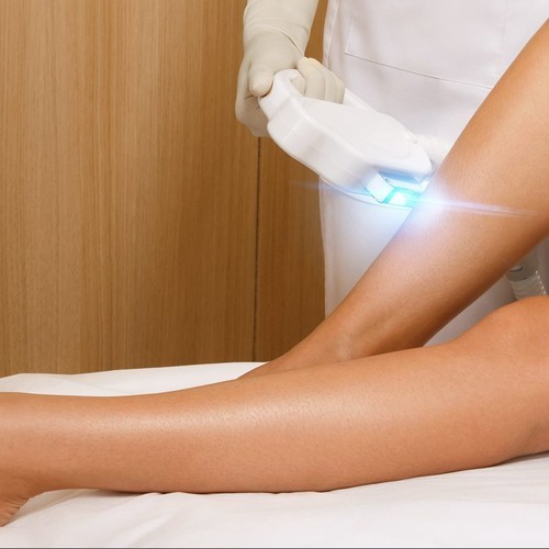 Laser hair removal ?1610580454