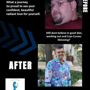 Mr m before and after journey