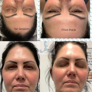 Ms m 1 to 5 facial pack