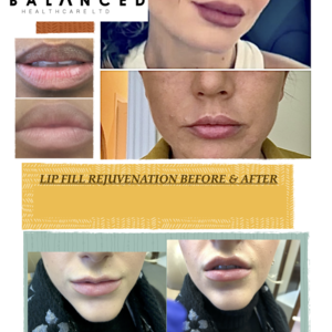 Lips   before   after  2021
