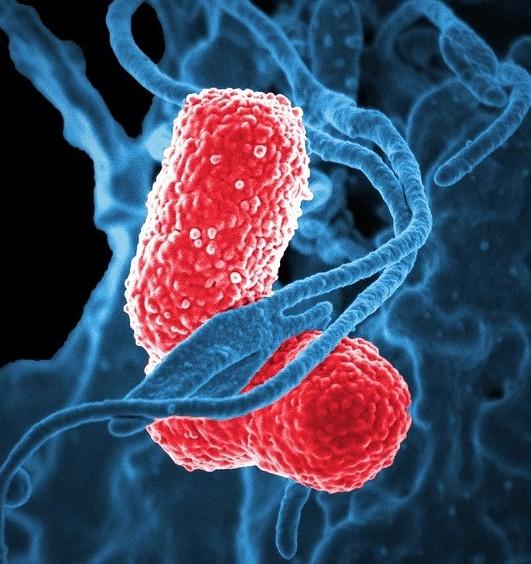 Bacteria - electron micrograph