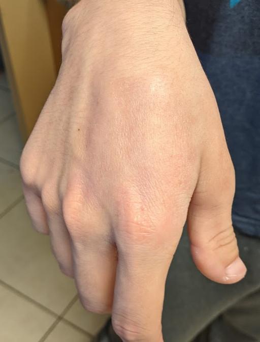 hand rash gone