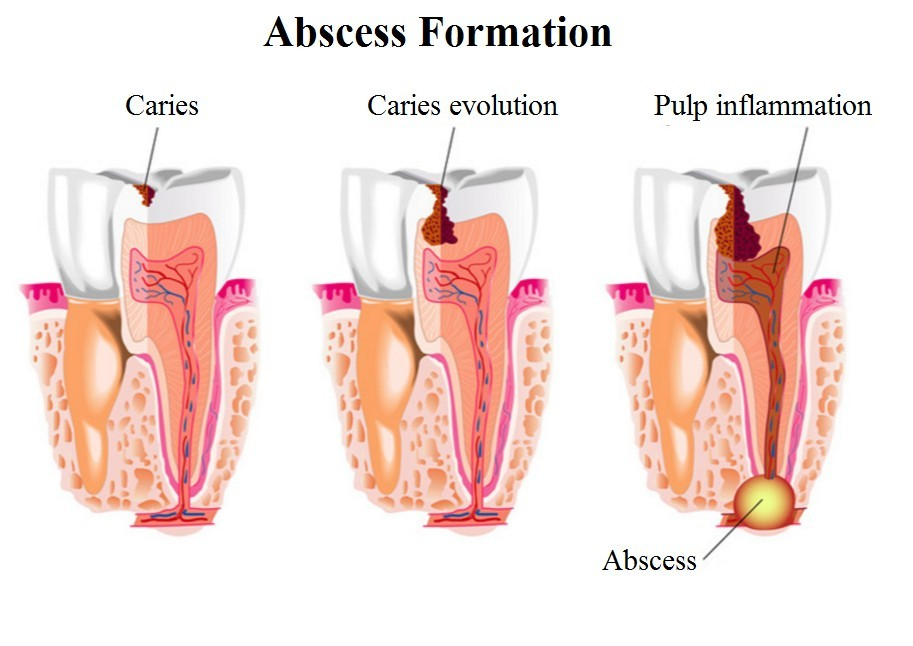 Abscess formation
