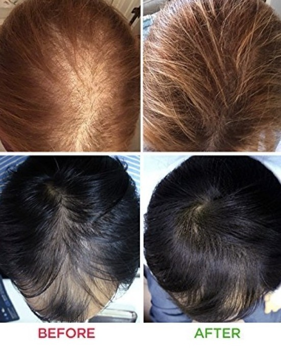 before and after hair light therapy