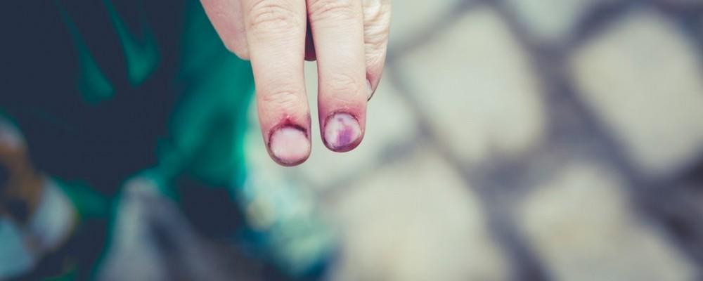 blood clot on fingers