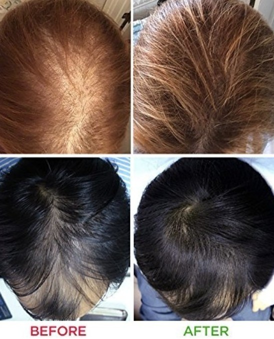 before and after light therapy for hair loss