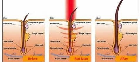 light therapy for the hair follicles