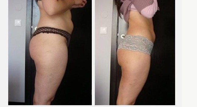 before and after photos on infrared slimming massager