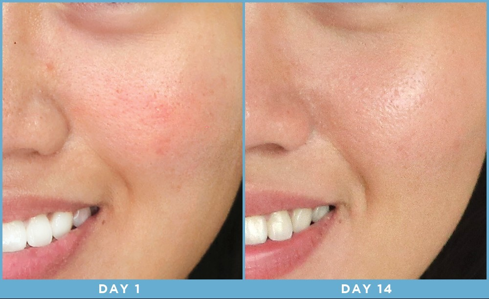 before and after light therapy for face