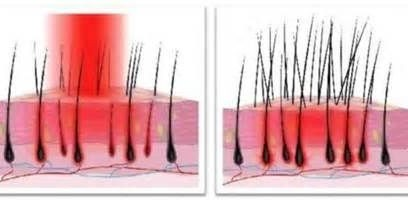 light therapy for more hair follicles