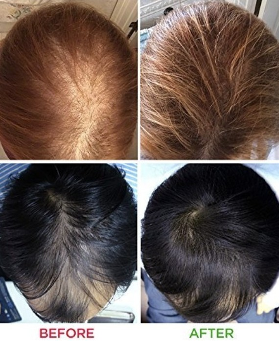 before and after hair growth treatment using infrared light therapy